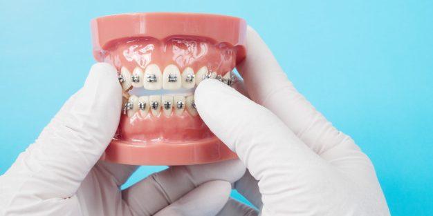 Dentes tortos e Mordidas Desalinhadas
