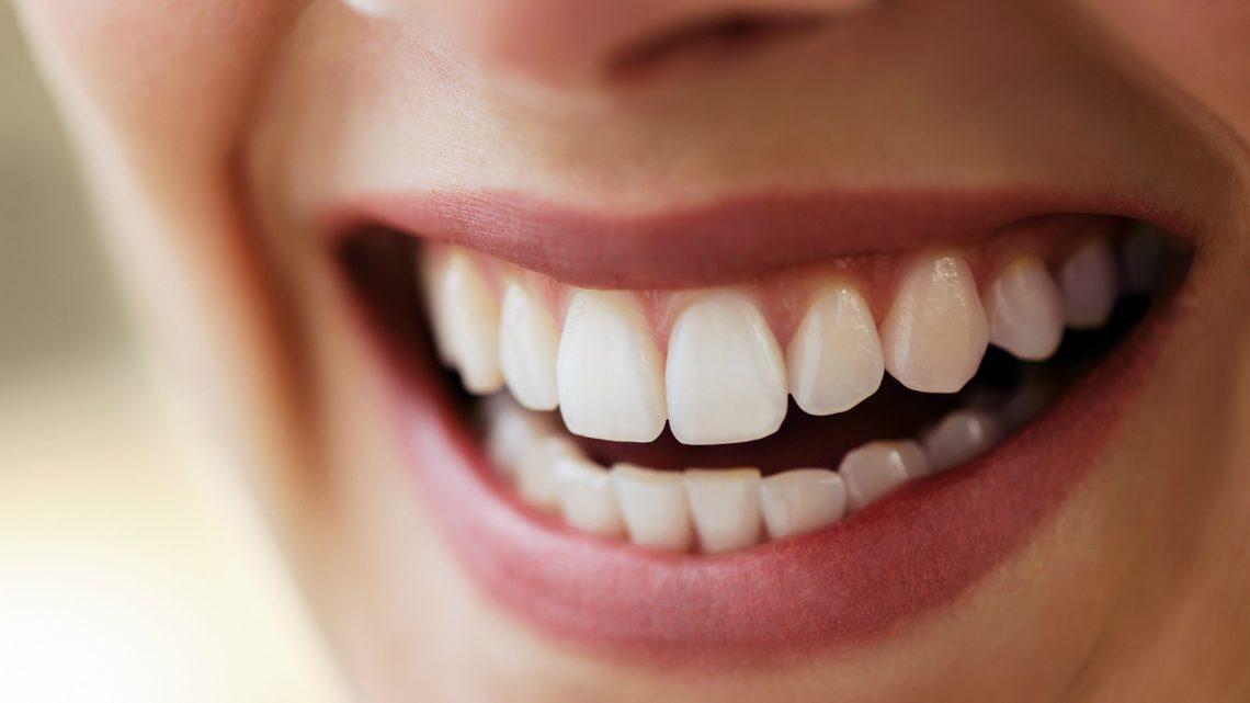 5 Maneiras de Consertar Dentes Manchados