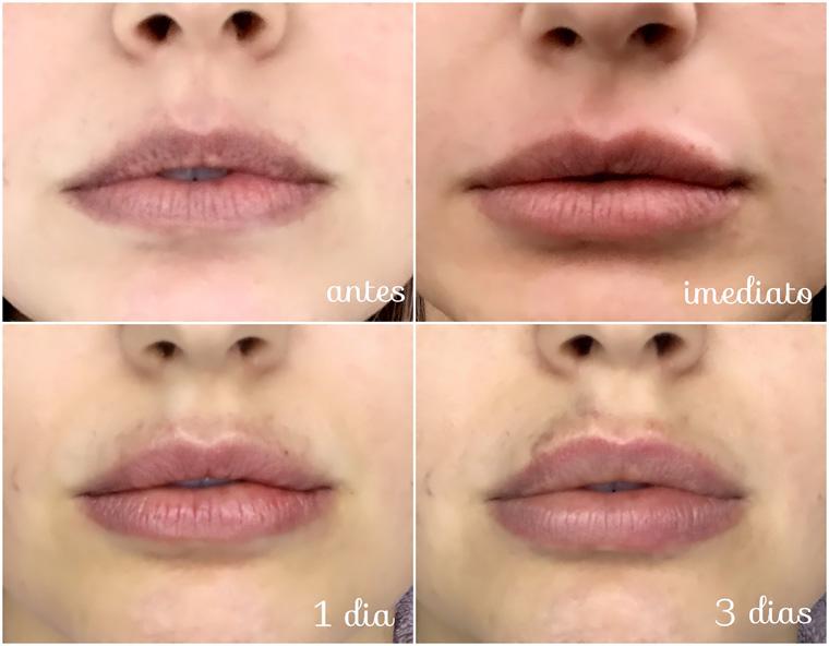 Preenchimento labial: o que é, preço e quem pode fazer